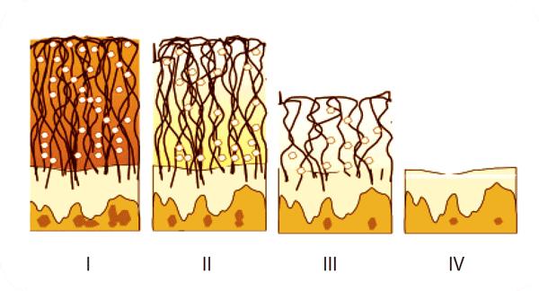 nivelkapselin repeämä polvessa